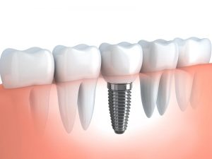 Implant Restoration Silverton