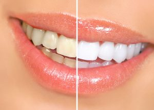 Teeth Whitening Silverton